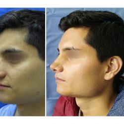 rinoplastia-masculina01