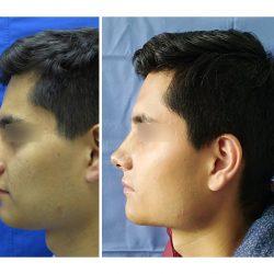 rinoplastia-masculina02