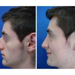 rinoplastia-masculina06
